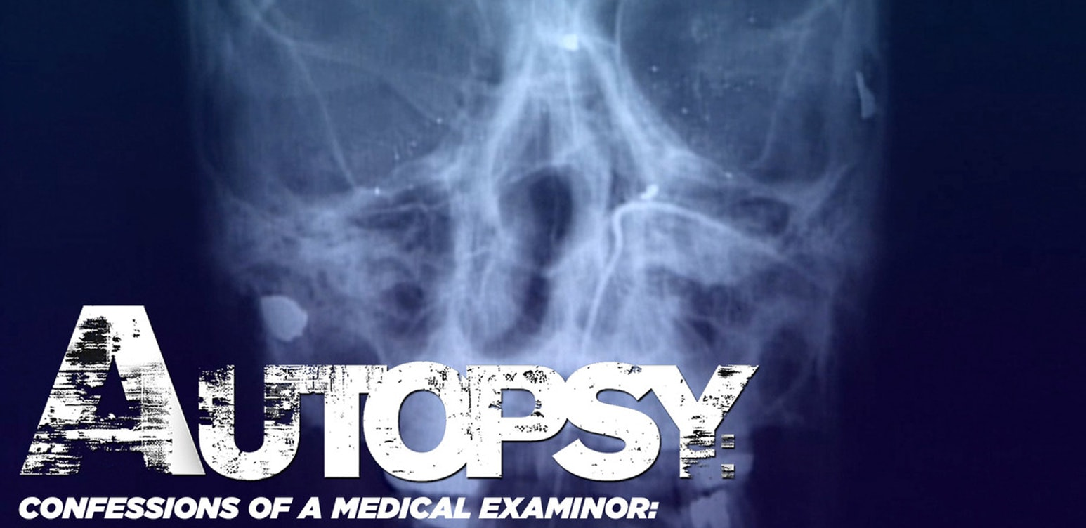 Autopsy: Confessions of a medical Examinor: America Undercover